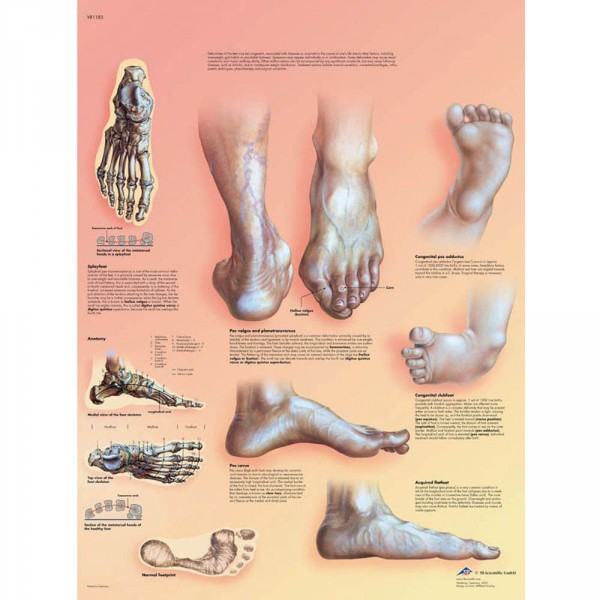 wall chart, defective position of the feet, 50 x 67 cm